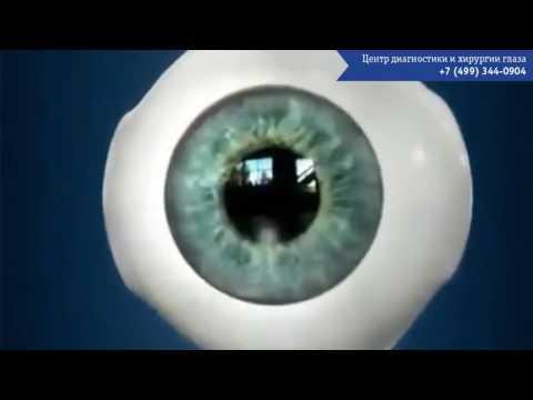 Как делают операцию на глаза при близорукости детям