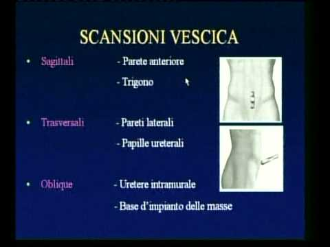 Prostata tecnica di massaggio il video