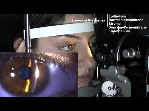 Nivelul permis de acuitate vizuală