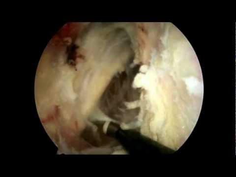 Elzáródás a csípőízület fájdalmában