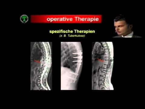 Schmerzen im unteren Rückenschmerzen im Bein