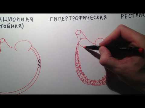 Гипертония и аюрведа