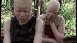 Deadly Hunt: Albinos in Tanzania