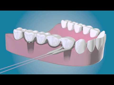 Hilo Dental TePe para implantes