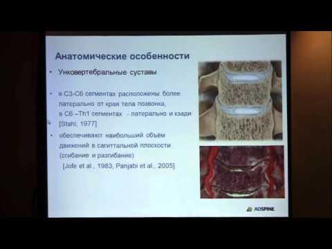 Остеохондроз передней части груди