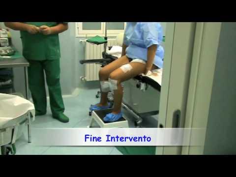 Le vene funzionano in caviale di gamba