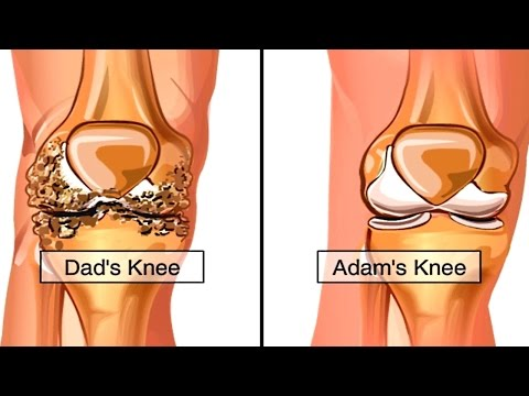 Video How Osteoarthritis Develops Animation - Causes & Symptoms of Osteoarthritis - Knee Pain Video