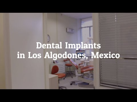 Vital-Information-on-Dental-Implants-in-Los-Algodones-Mexico