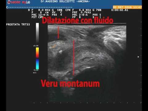 Attrezzature mediche per il trattamento della prostatite