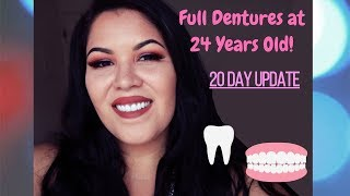 BIG FEAR BEFORE GETTING FULL DENTURES!/20 DAY POST PROCEDURE