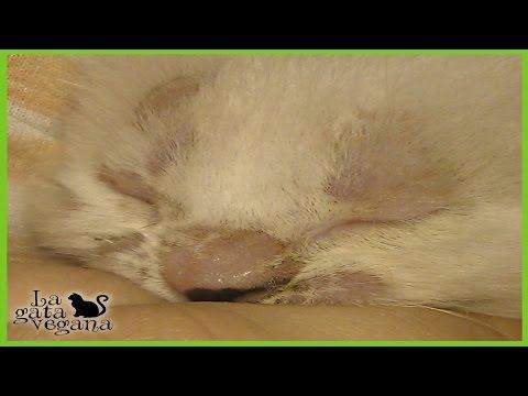 El tratamiento del hongo de las uñas por el vinagre y la glicerina