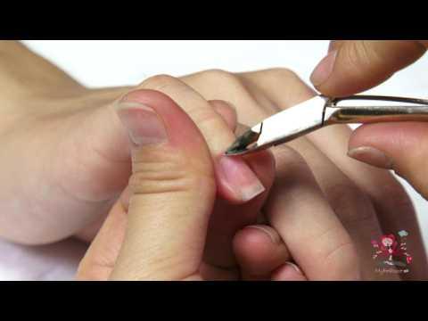 Πως να αφαιρέσετε τα πετσάκια από τα νύχια