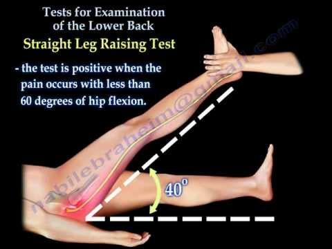 Contrattura del menisco del ginocchio