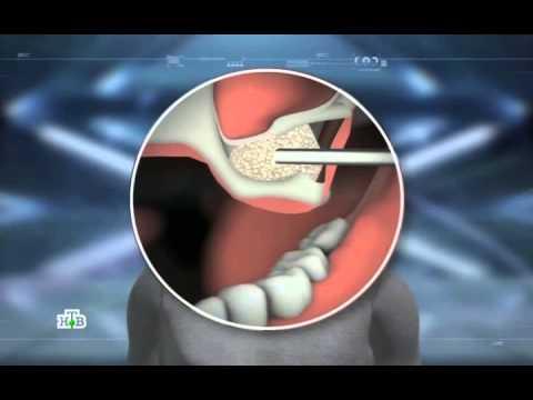 Зубные импланты: правда и вымысел