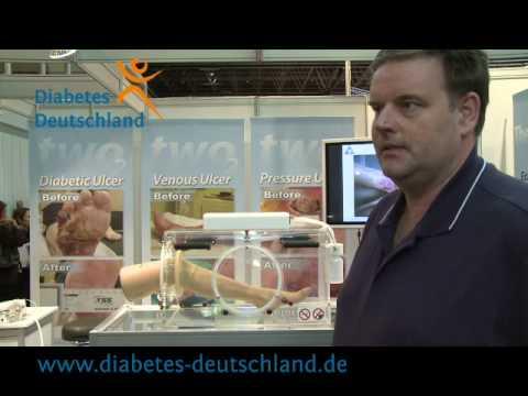 Ändert das endokrine System bei Diabetes