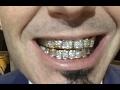 "Paul Wall ""Flexing Diamond Grill Worth $90K At Grammys"""
