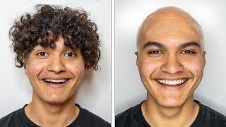 I Went Bald