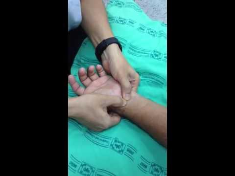พิกลพิการ ploskovalgusnoy เท้า