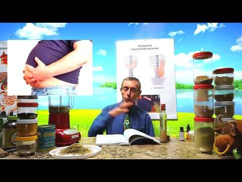 Наличие глистов у человека симптомы