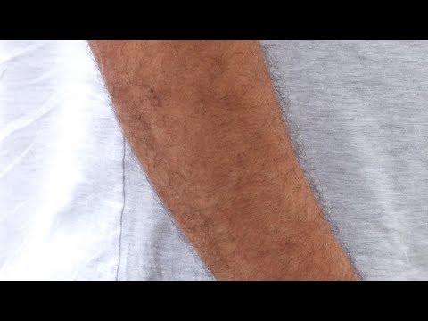 Você sabia? Câncer de pele é o que mais atinge os homens