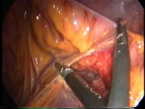 Operazione laser di emorroidi in Pyatigorsk