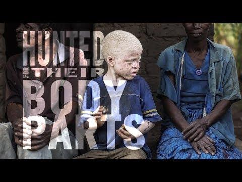 Mummy mukha whitens