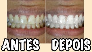 Como Clareei Os Dentes Na Hora Free Video Search Site Findclip