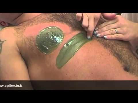 Massaggio a nuclei di ernia pulposi in reparto cervicale