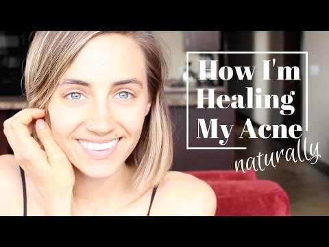 Video How I'm Healing My Acne Naturally