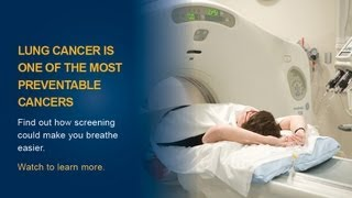 Lung Cancer Screening