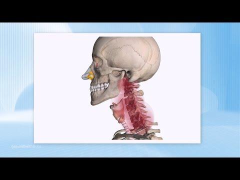 Arzt für die Behandlung von Kopf- und Halsgefäß