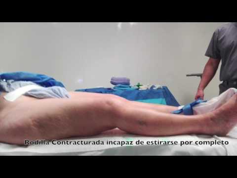 Si es posible ejecutar en una hernia torácica