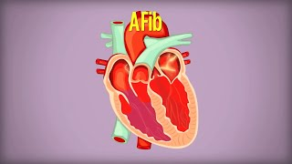 Living with Atrial Fibrillation (AFib)
