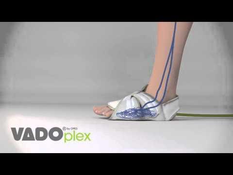 La veine ballonnée sur le pied sur le pied