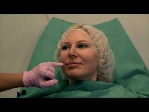 Maschera per pelle di faccia secca a 30-35 donne estive