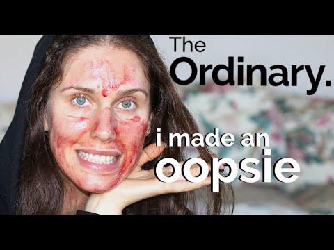 Apology: The Ordinary - Chemical Acid Peels & Skincare - I Made A Mistake