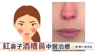 臉紅真的不是在害羞!中醫教你正確判別「酒糟鼻」別再傻傻分不清 | 中醫|酒糟鼻|酒渣鼻|玫瑰斑|臉紅|皮膚炎|喝酒|泛紅|針灸|鄧正梁