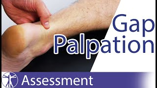 Gap Palpation Test | Achilles Tendon Rupture