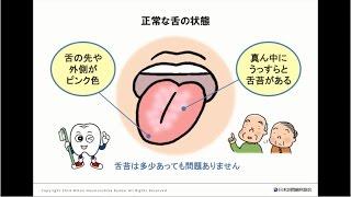 舌苔でわかる体の状態