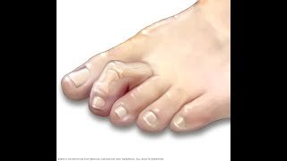 How to treat hammer toes without surgery | Benjamin Marble DPM