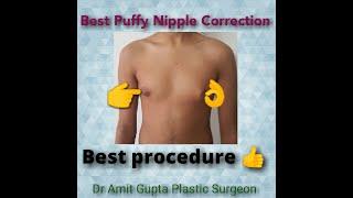 Best Puffy Nipple Correction