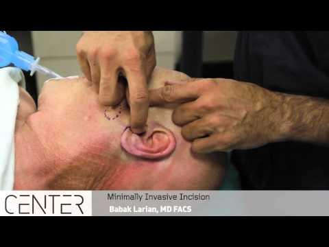Trattamento nonconvenzionale di neurodermatitis
