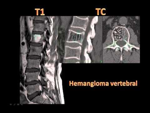 Dolore acuto nella parte sinistra inferiore della schiena durante la gravidanza