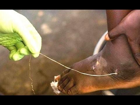 Как вывести лямблии тыквенными семечками