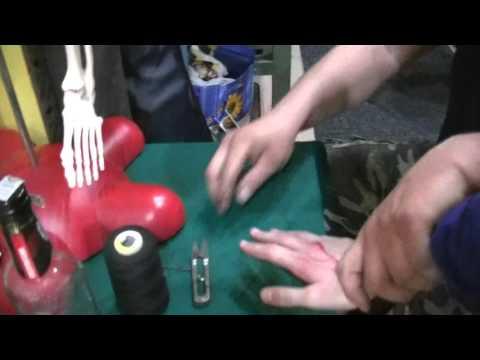 Foot obrzęk po zabiegu koślawego