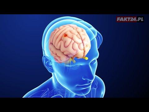 Wielkie żywe bóle stawów