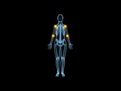 Методика самооценки активности ревматоидного артрита