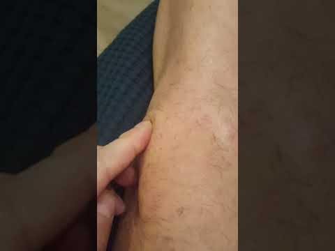 Коленный сустав после артроскопии. Уплотнения (шишки) под швами.