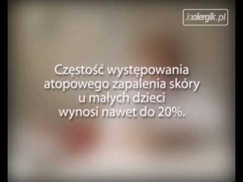 Protopic w leczeniu łuszczycy