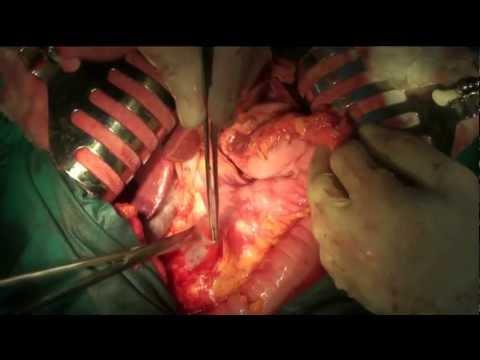 Przezklatkowa resekcja przełyku (metoda Ivora Lewisa) z limfadenektomią 2F (two-field lymphadenectomy)